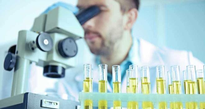 urine test gender